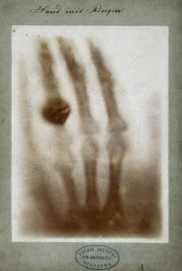 0first_medical_x-ray_by_wilhelm_rontgen_of_his_wife_anna_bertha_ludwig-s_hand_-_18951222.jpg